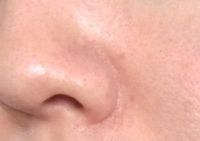 肌断食の記録454日目~肌断食を始めて約1年5カ月「鼻の毛穴の状態」~