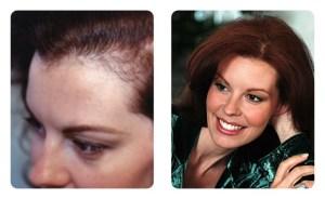 استعادة الشعر للنساء