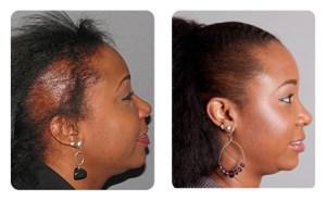 صور استعادة الشعر للنساء