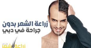 زراعة الشعر بدون جراحة في دبي