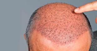 أحدث طرق زراعة الشعر في دبي