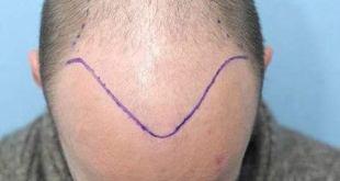 كم تستغرق عملية زراعة الشعر ؟