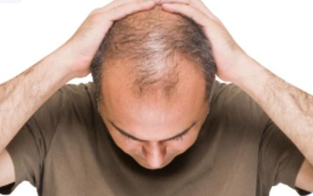 هل يمكن اجراء عملية زراعة الشعر من شخص اخر ؟