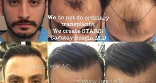 زراعة الشعر بتقنية الاقتطاف في دبي كوسمتك سيرجري