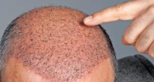 أشهر 6 دول في زراعة الشعر و أسعارها