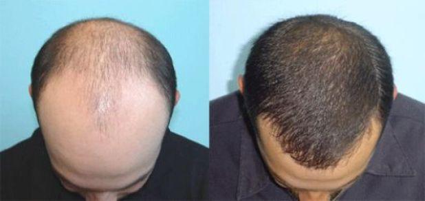 طريقة الاقتطاف في زراعة الشعر FUE قبل وبعد