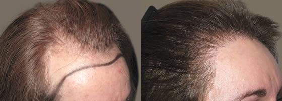 صورة قبل وبعد لعملية زراعة الشعر للنساء