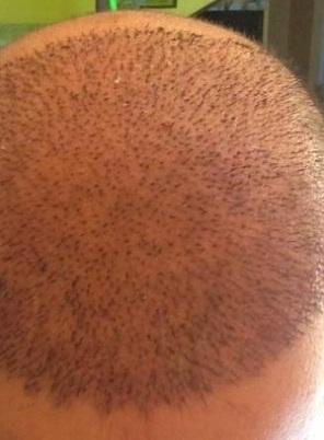 اهم النصائح بعد زراعة الشعر