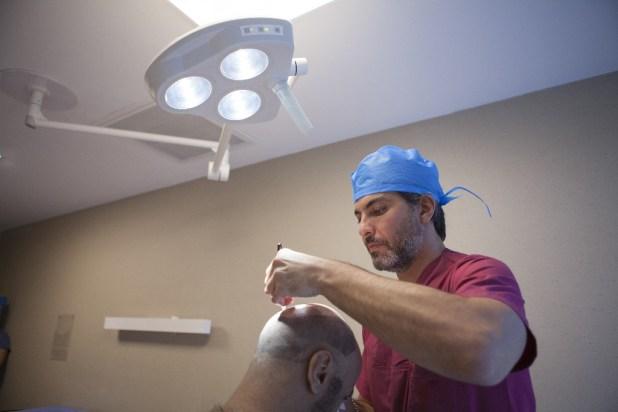 زراعة الشعر في تركيا - الدكتور سركان أيغون