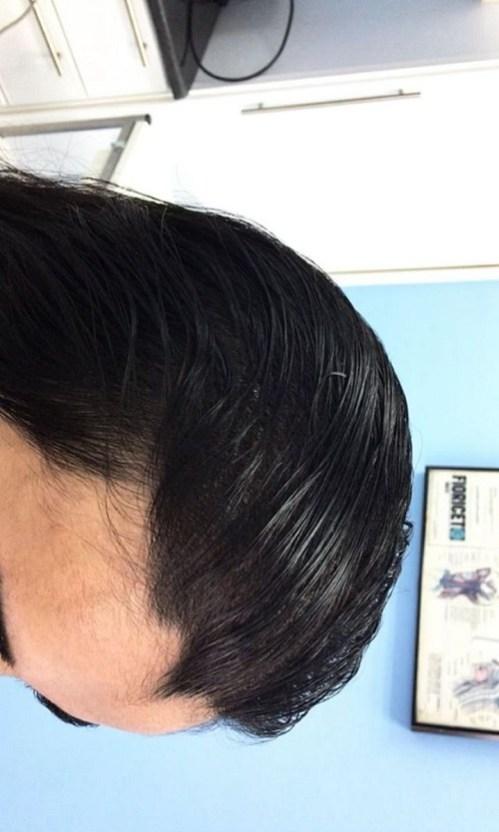 نتيجة زراعة الشعر بعد 8 أشهر