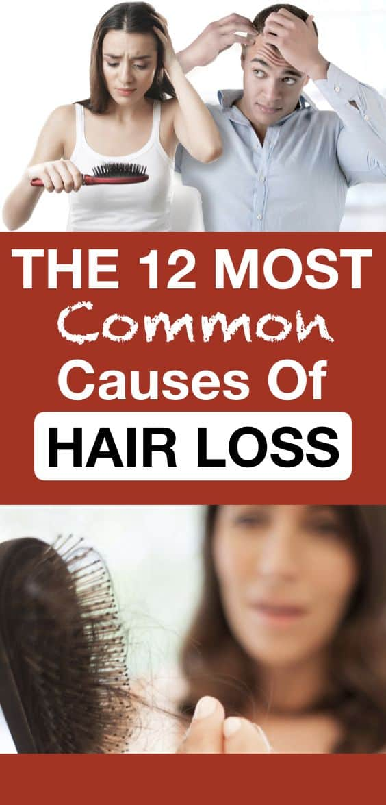 12 Common Causes Of Hair Loss