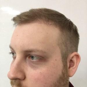 HAIR RESTORATION NZ