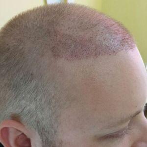 Transplanted hair 11 days post-op