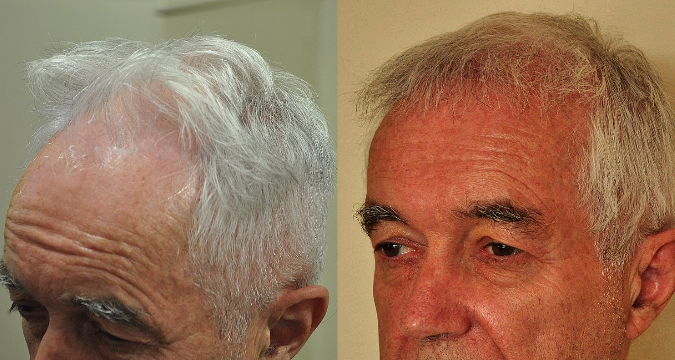 before and after hair transplant nz
