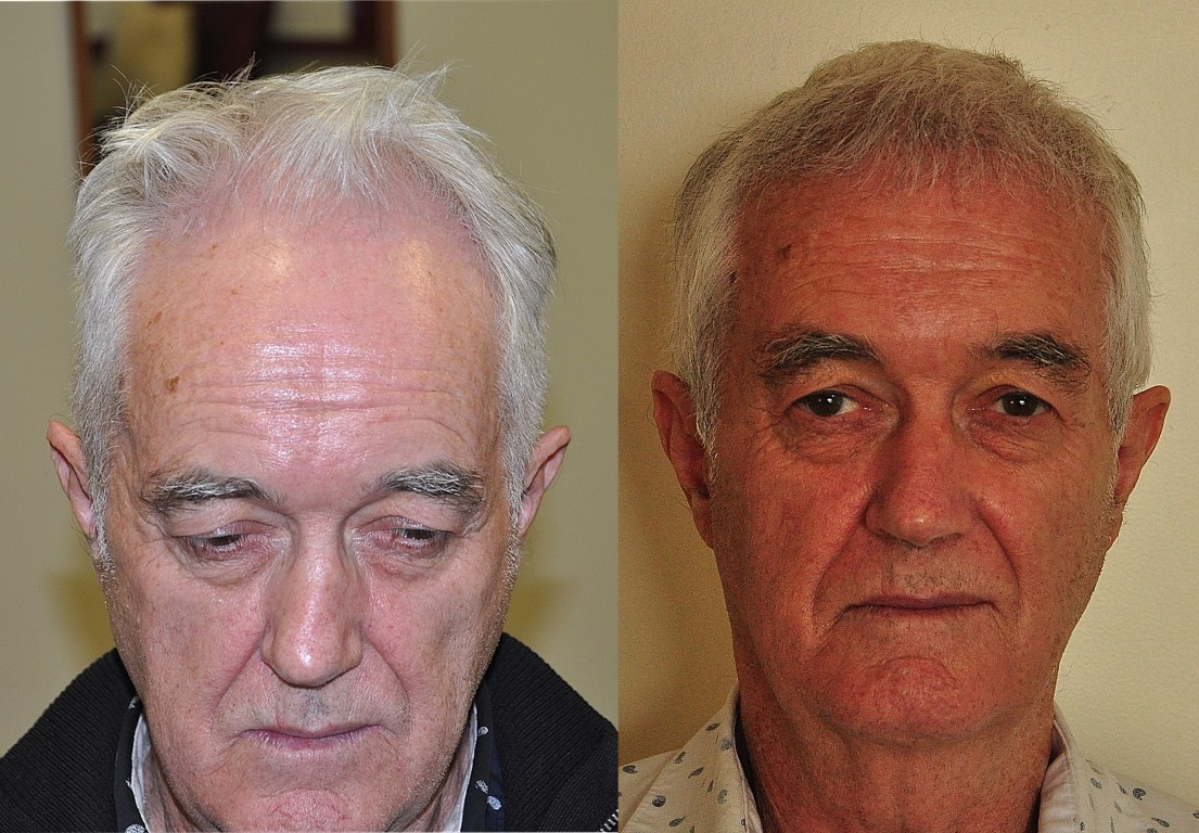 Hair transplant NZ before and after