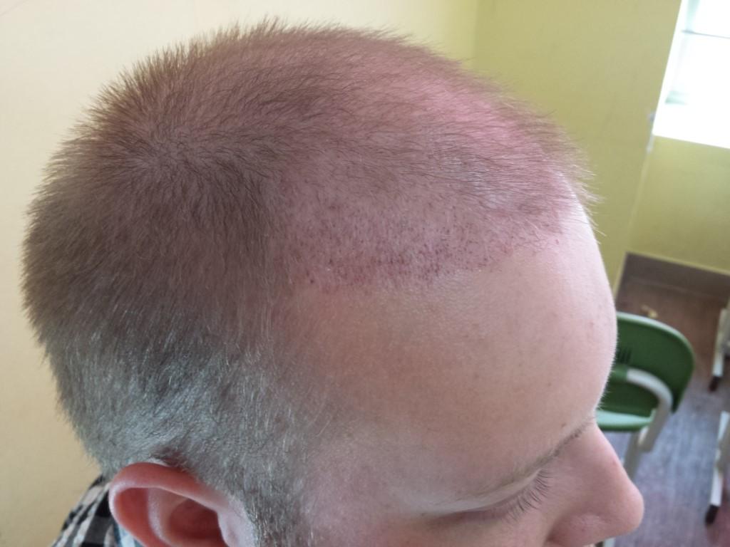 hair-transplant-results