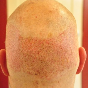 Hair transplant donor site