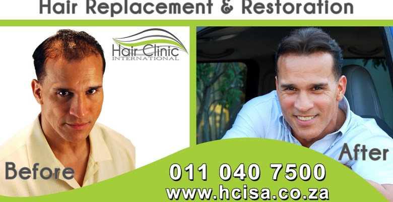 hair replacement & restorations
