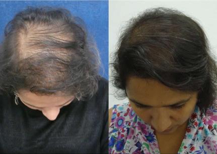 Hair Complex Plus