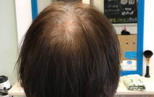 電子トリートメントを使用して8か月後の髪
