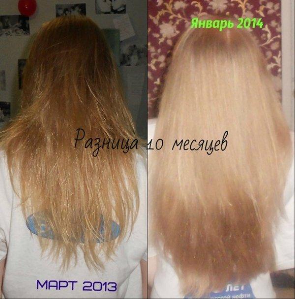 фигурист сколько за год вырастают волосы фото николае