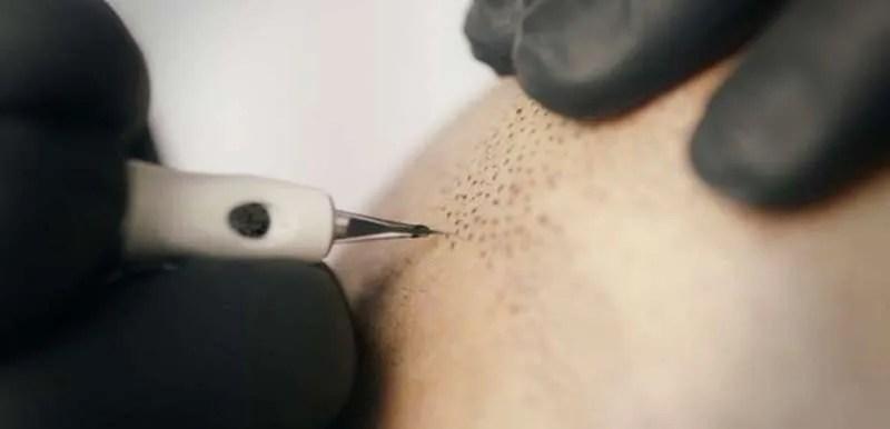 Nano Needling Hair Illusions