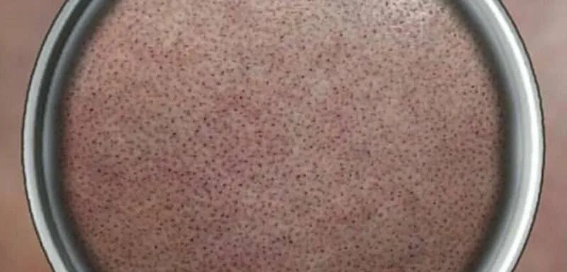 Hair Illusions Scalp Micropigmentation