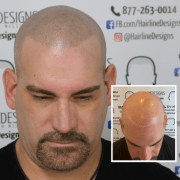 procedure options hairline design