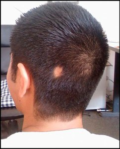 hair-loss-cure-Alopecia_areata_bald_spot