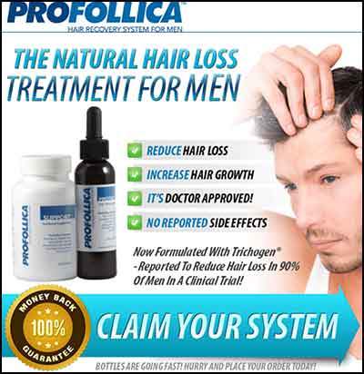 Hair Loss Treatment For Men Naturally