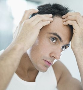 male-pattern-baldness-or-androgenic-alopecia