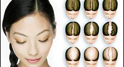 women-hair-loss-prevention
