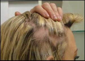 hair-clipping-traction-alopecia