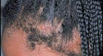 traction-alopecia-on-women
