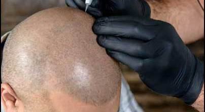 Scalp-Micro-Pigmentation-Procedure
