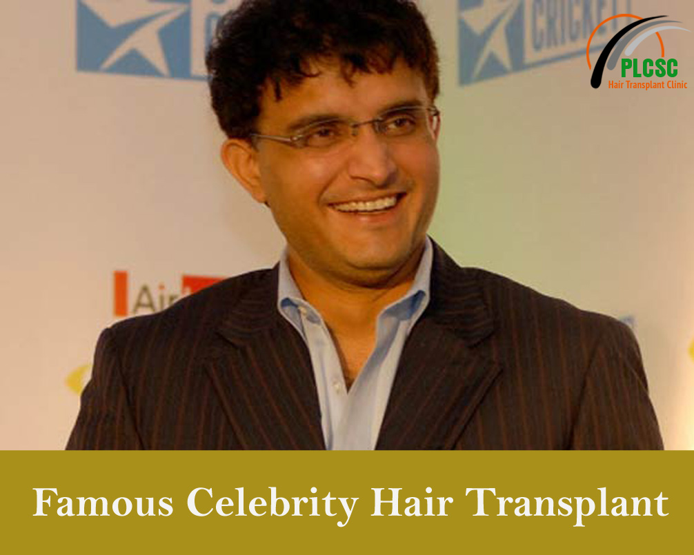 Points to Know Before Preparing for Hair Transplant?