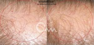 Hairmax lasertherapy foto 1 - Hairmax Lasertherapy Shop