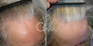 Hairmax lasertherapy foto 7 - Hairmax Lasertherapy Shop