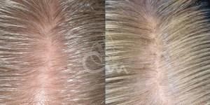 Hairmax lasertherapy foto 9 - Hairmax Lasertherapy Shop