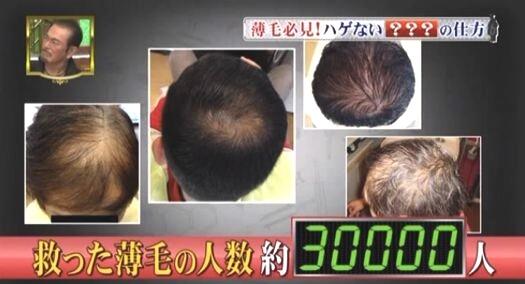 救った薄毛の人数30000人