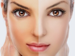 Want A Fairer Complexion Go For this Amazing Treatment