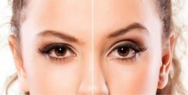 Want to lift your Eyebrows this treatment will Amaze you