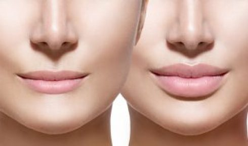 Facial Fillers, Procedures, Post Treatment Guidelines, Faq