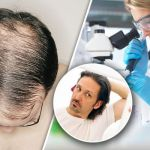 Do Hair Loss Treatments work?
