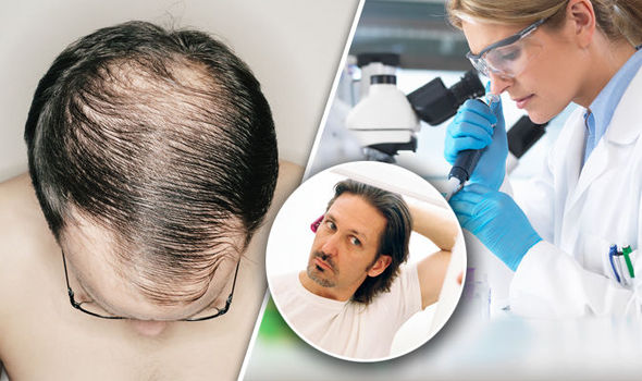 Ways to Stop Hair Loss