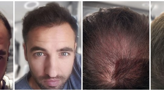 Hair Loss Can Be Reversed