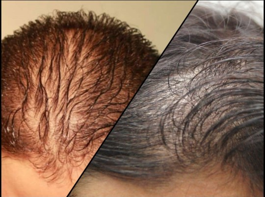 diffused hair loss