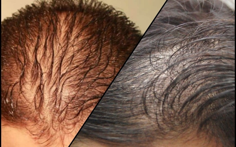 diffused hair loss