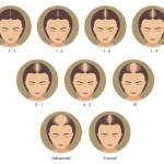 More Women Suffer Hair Loss