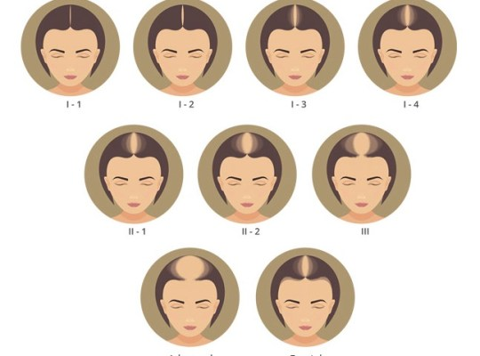 female hair loss patterns